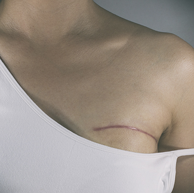 Young woman with scar from breast surgery